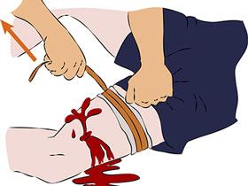 大出血应急应对法则